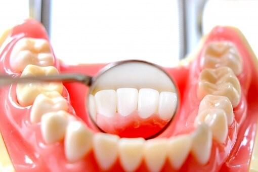 口腔外科治療